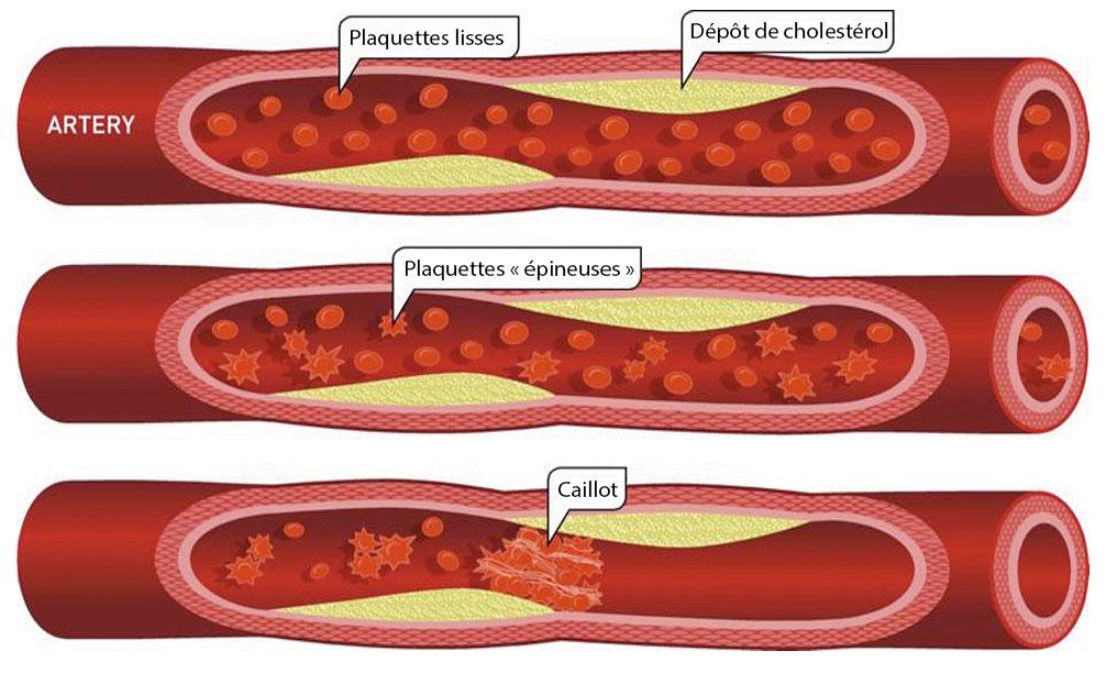 artere_cholesterol